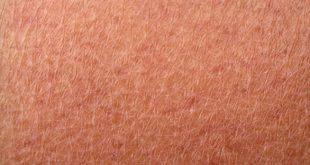 skin-1554875[1]