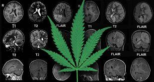 marijuana-epilepsy[1]